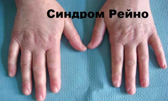 Пентоксифиллин назначают пациентам, страдающим синдромом Рейно