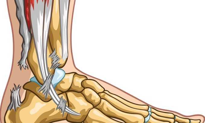 Показанием к применению МП является растяжение мышечно-сухожильных структур