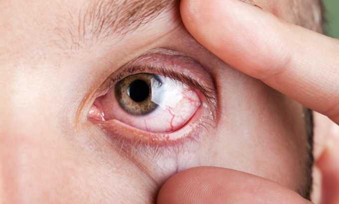 Препарат назначают при тромбозе сетчатки глаза и иных патологий глазной сетчатки, вызванных проблемами с питанием глазной мускулатуры