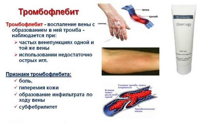 Медикамент показан при тромбофлебите
