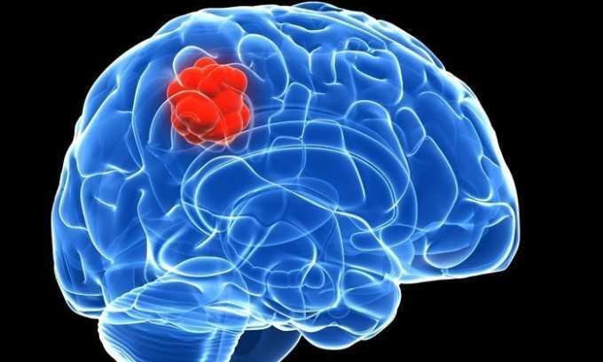 Препарат приносит результаты при сосудистых нарушениях головного мозга