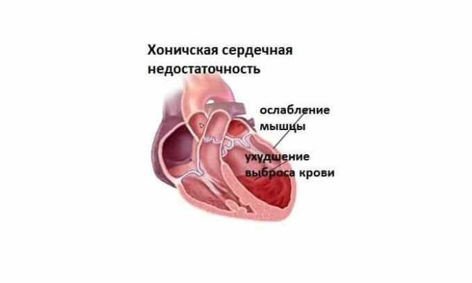 С осторожностью таблетки назначаются при хронической сердечной недостаточности