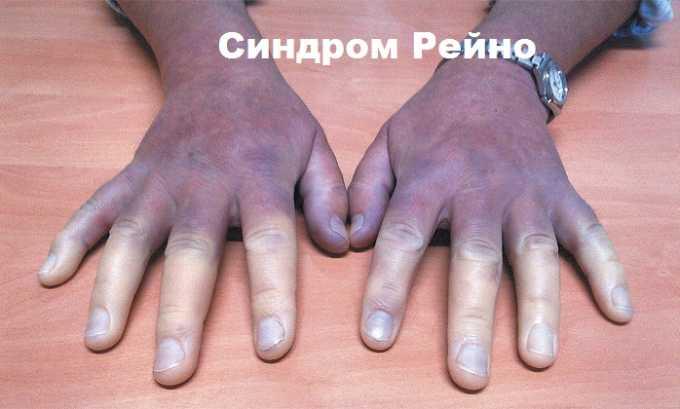 Курантил назначают при таком заболевании, как синдром Рейно