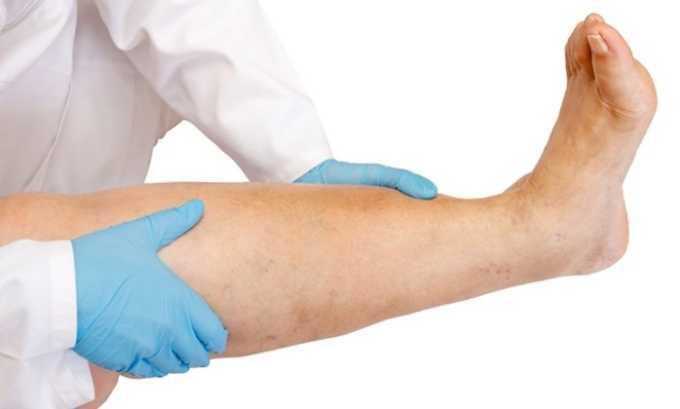 Средство принимают для того, чтобы осуществлять терапию таких заболеваний, как хроническая лимфовенозная недостаточность ног