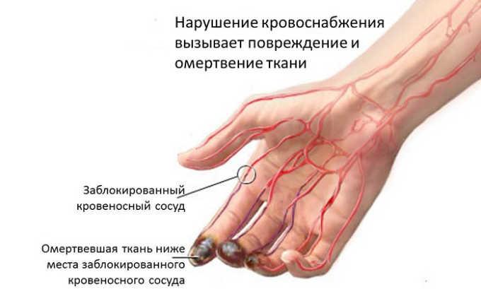 В перечень показаний к применению лекарственного средства Алпростан является болезнь Бюргера
