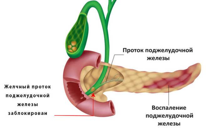 Применять Трипсин противопоказано при воспалении поджелудочной железы