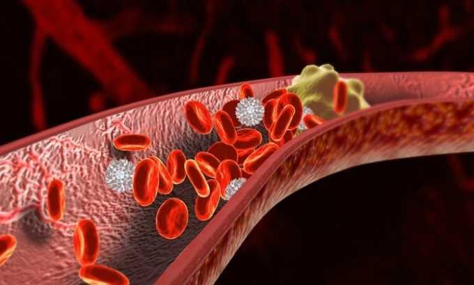 Аркистра назначают для терапии острой формы глубокого венозного тромбоза