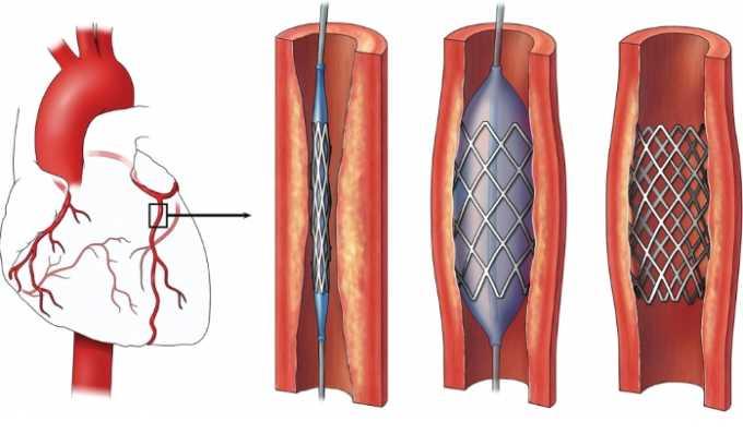 Нежелательно использовать препарат в процессе или перед проведением ЧКВ у больных с инфарктом миокарда