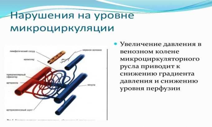 Лекарственное средство используется при нарушении микроциркуляции