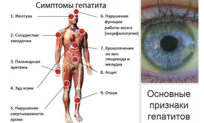 Препарат может вызвать гепатит