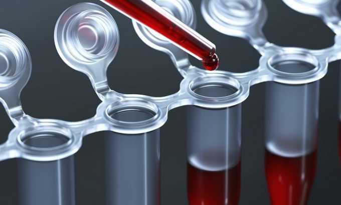 На первом же приеме врач назначит сдать несколько видов анализов крови, что позволит точнее диагностировать болезнь