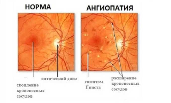 Врачи назначают Трентал 400 при сосудистых заболеваниях глазной сетчатки