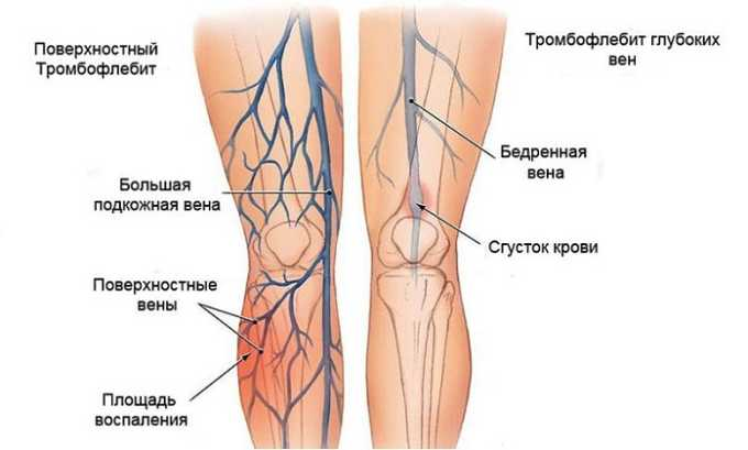 Препарат помогает при лечении тромбофлебита