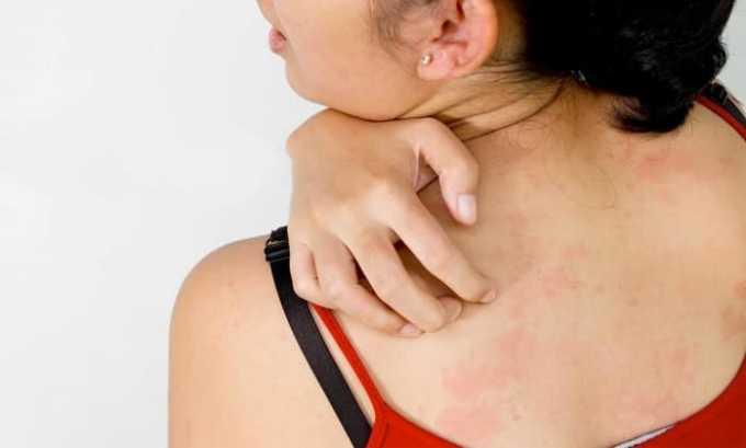 Применение Гепарина Акрихин может вызвать жжение