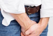 Причины, симптомы, методы лечения расширения вен полового члена