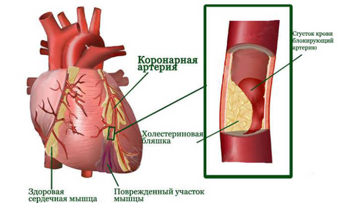 Назначение лекарства является обоснованным при остром инфаркте миокарда