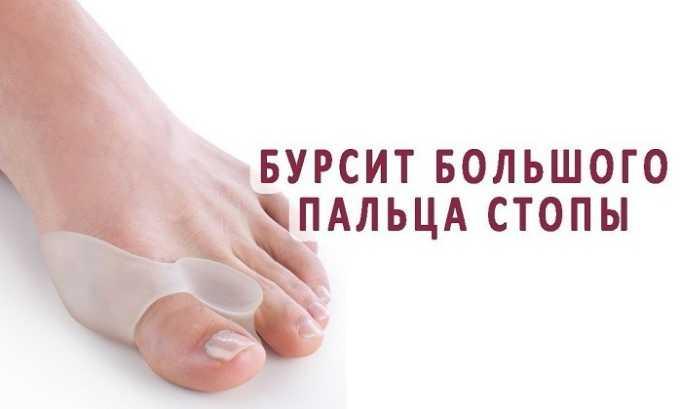 Также препарат используют для лечения бурсита