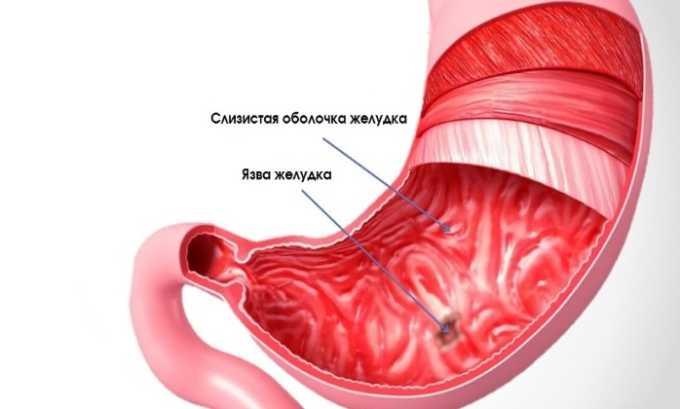 Побочные действия от препарата проявляются в виде обострения язвы желудка