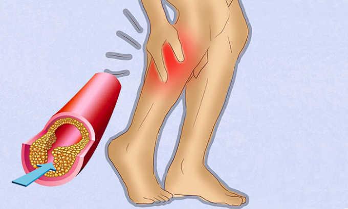 Трентал 100 используют в лечении склеротического поражения периферических артерий, при которых у пациента наблюдается хромота
