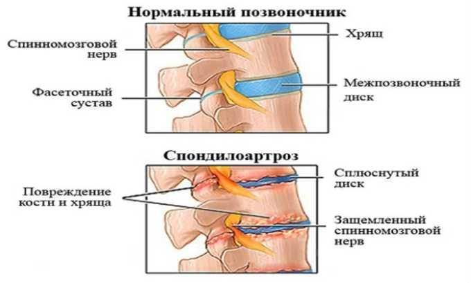 Лекарственное средство применяют при спондилоартрозе