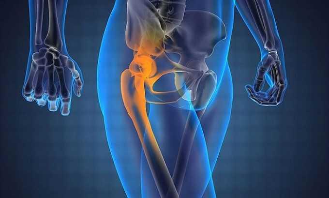 Если пациент страдает заболеваниями ревматического характера, лекарственное средство помогает снизить болевой синдром, уменьшить состояние припухлости сустава