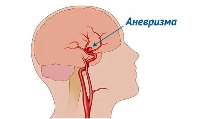 Гемапаксан нельзя использовать пациентам, имеющим такую патологию, как аневризма кровеносных сосудов головного мозга