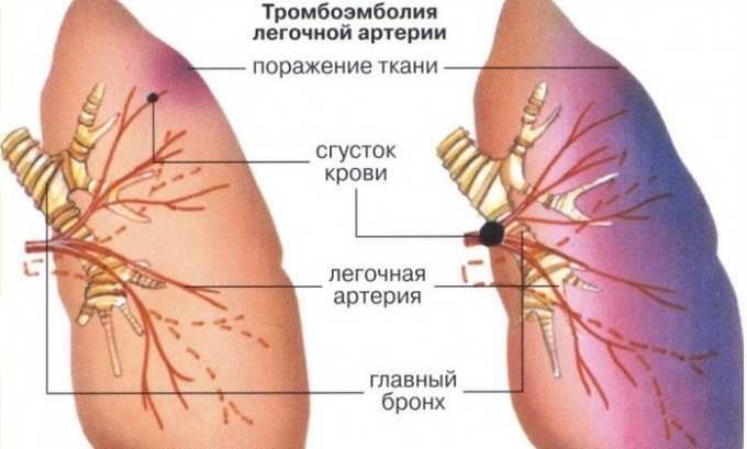 Также препарат назначают при тромбоэмболии легочной артерии