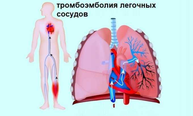 Препарат используют для лечения тромбоэмболии легочных сосудов