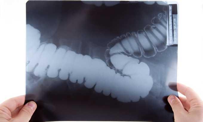 Для диагностики тромбоза кишечника проводится рентгенография