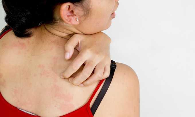 Аллергическая реакция на препарат проявляется сыпью, жжением и зудом