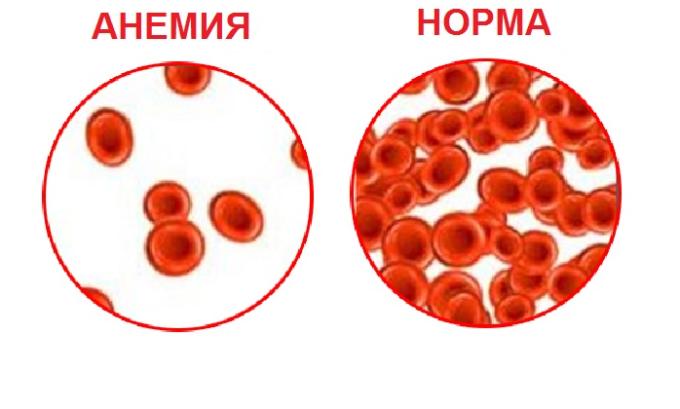 Прием препарата после хирургических вмешательств увеличивает риск развития анемии