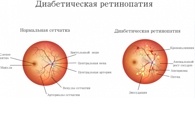 С осторожностью препарат применяют при диабетической ретинопатии