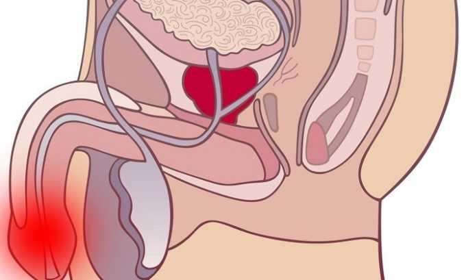 Также Диклофенак Ретард рекомендуют принимать при инфекционно-воспалительных заболеваниях мочеполовой системы