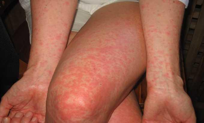 Пентоксифиллин может вызвать появление высыпаний по типу крапивницы