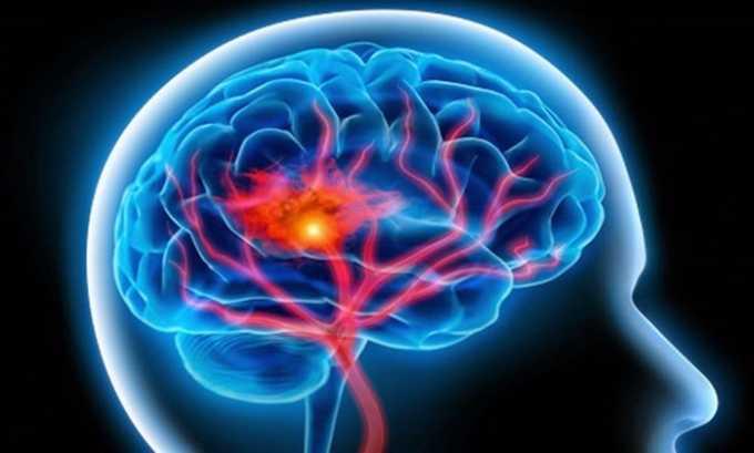 Агапурин рекомендуется при патологиях кровообращения сосудов головного мозга