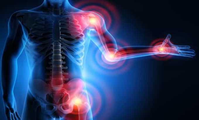 Препарат используют для снятия болевого синдрома при болезнях суставов