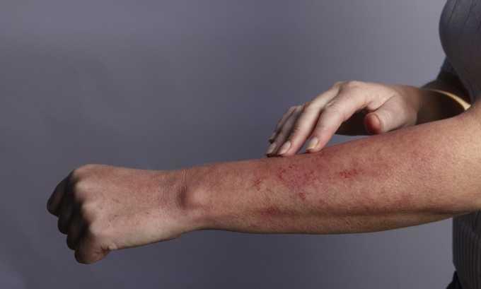 Противопоказанием к приему Прадаксы является аллергическая реакция на ингредиенты препарата