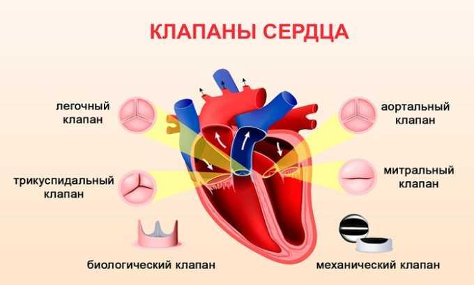 Курантил показан к применению для предупреждения осложнений после операции по протезированию клапанов сердечной мышцы