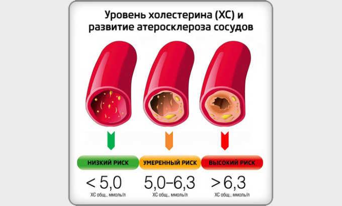 Препарат Розарт понижает уровень холестерина, B-аполипропротеина и триглицеридов