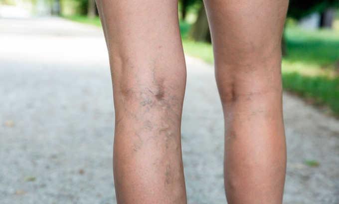 Средство принимают для того, чтобы осуществлять терапию таких заболеваний, как варикозное расширение вен нижних конечностей