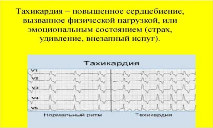 При передозировке препаратом может возникнуть тахикардия