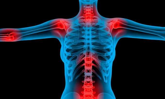 Индометацин софарма применяют при патологии опорно-двигательного аппарата