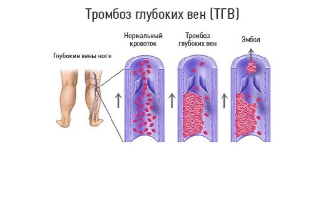 Прадакса 150 принимают с целью лечения тромбоза вен