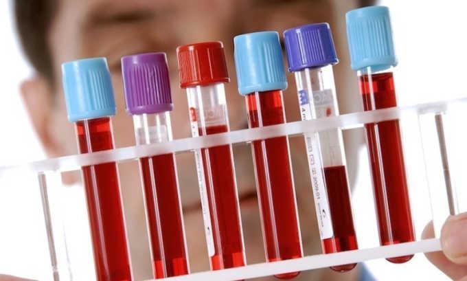 При подозрении на тромбофлебит необходимо провести лабораторные анализы крови на определение уровней фибриногена, тромбоцитов, антитромбина и пр