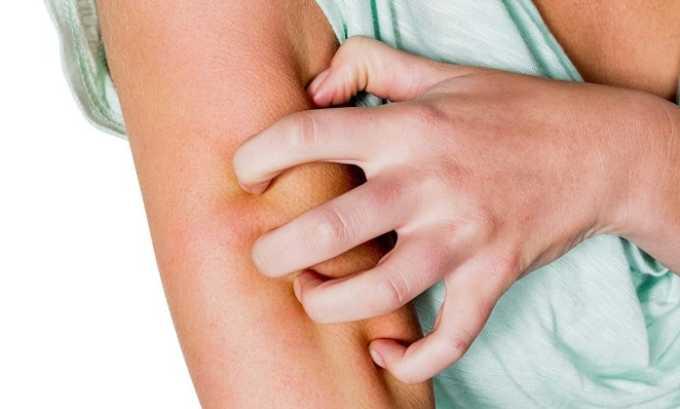 После применения препарата может возникнуть кожный зуд
