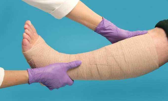 Для восстановления полноценного кровообращения ноги после операции фиксируют эластичным бинтом
