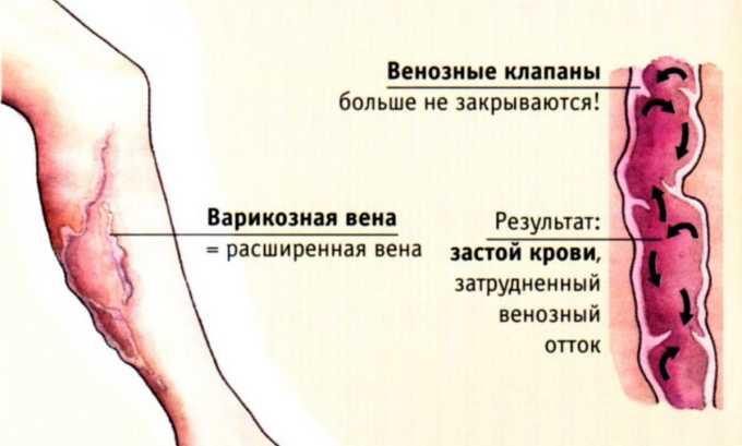 Среди положительных эффектов прибора для лечения варикоза основным является повышение мышечного и венозного тонусов