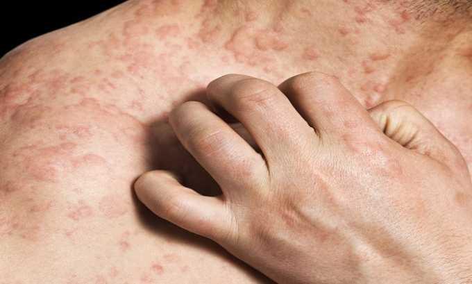 Для уменьшения выраженности симптомов может рекомендоваться врачом при лечении аллергии