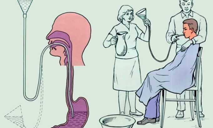 При легких и умеренных формах передозировки лечение сводится к промыванию желудка