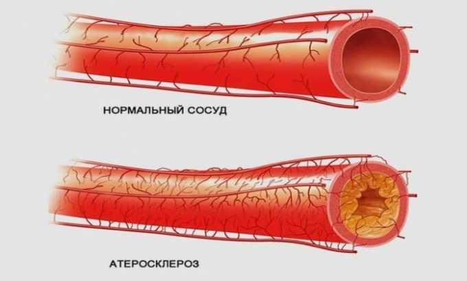 Препарат используют при атеросклерозе